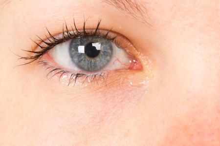 תרופות סבתא לעיניים יבשות