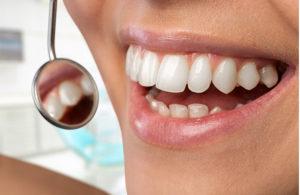 דרכים שונות לביצוע הלבנת שיניים