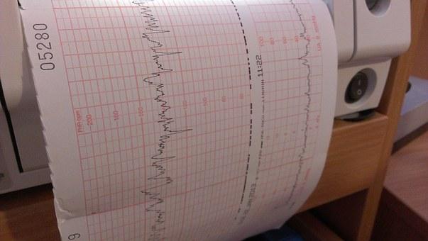 doppler-ultrasound-381363__340[1]