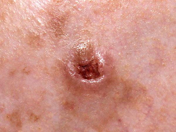 כל מה שצריך וחשוב לדעת על סרטן העור