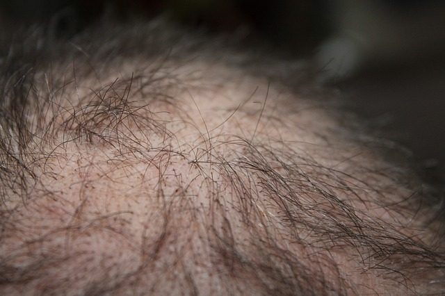 איך מטפלים בנשירת שיער