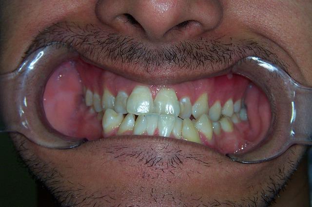 שיטות לביצוע יישור שיניים